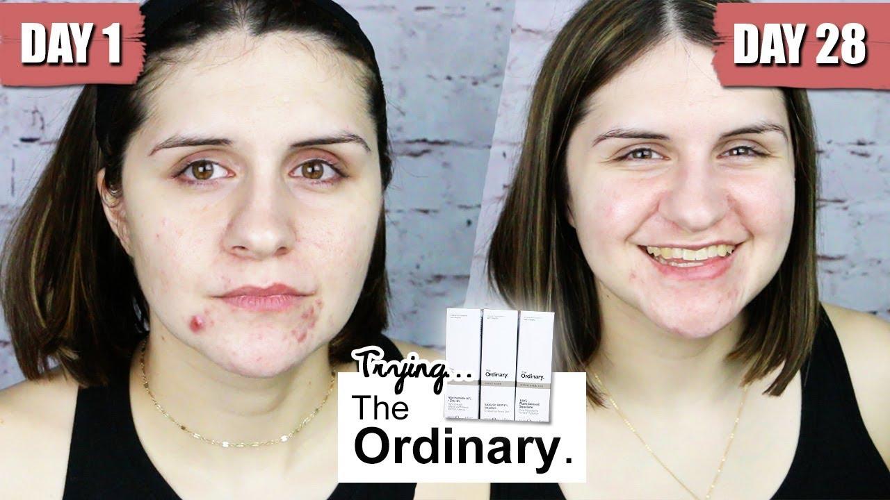 I Try The Ordinary Success Emelia Kate Youtube