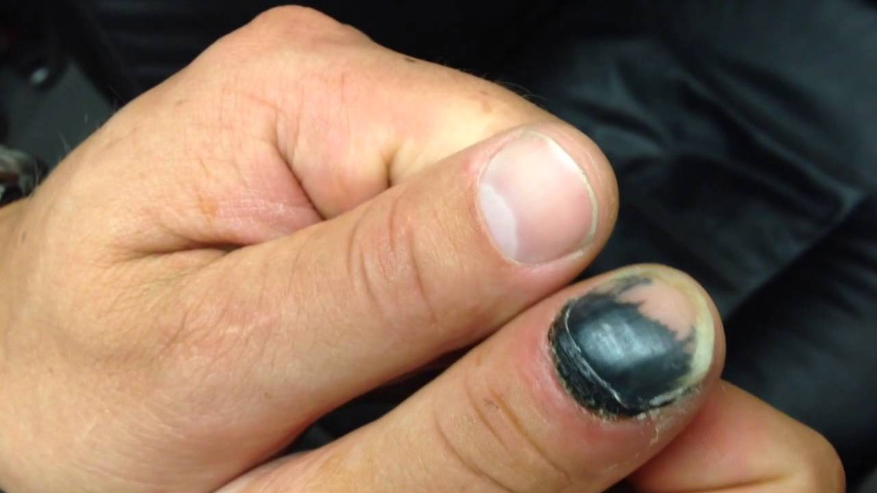 Finger nail falling off slammed in car door - YouTube