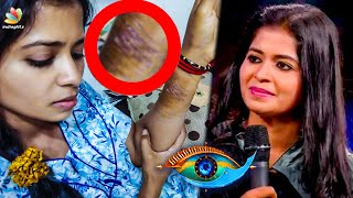 Madhumitha's Real Wounds Revealed | Bigg Boss 3 | Daniel Annie