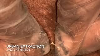 Urban Extraction Episode 47