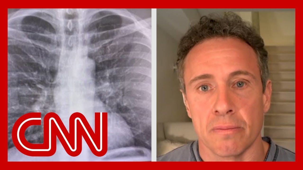 Chris Cuomo shares chest X-rays after coronavirus diagnosis