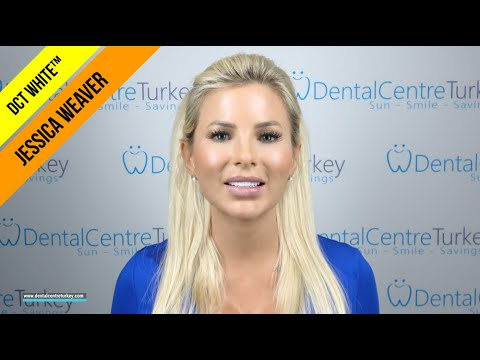 jessica-weaver-travelled-from-the-usa-to-turkey-for-cosmetic-dentistry-|-dct-white™-veneers