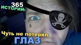 365 Историй: Чуть не потерял ГЛАЗ / Андрей Мартыненко