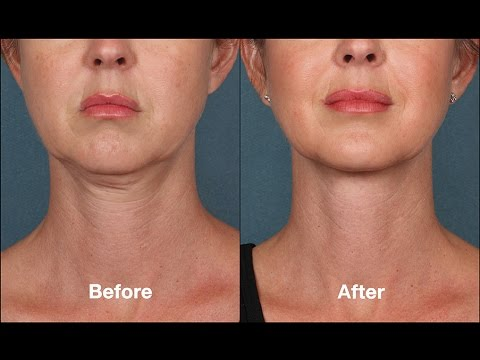 Chin exercises before after photos