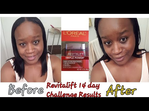 day-14-after|loreal-revitalift-14-day-challenge-|-results-|ms-nicole