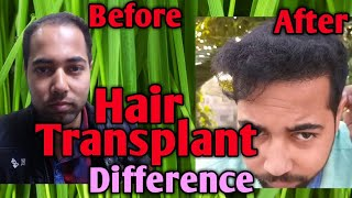HAIR TRANSPLANT(2018)|8 MONTHS RESULT OF MY HAIR TRANSPLANT|BEST HAIR TRANSPLANT IN INDIA