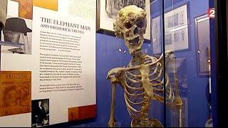 Elephant Man - Les mystères de Londres : Episode 4