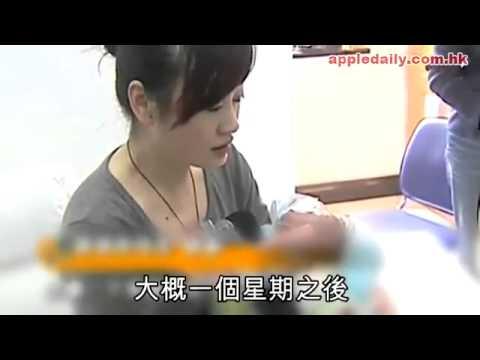 Em bé bị lão hóa do tiêm văcxin
