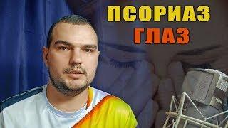 видео: ПСОРИАЗ ГЛАЗ