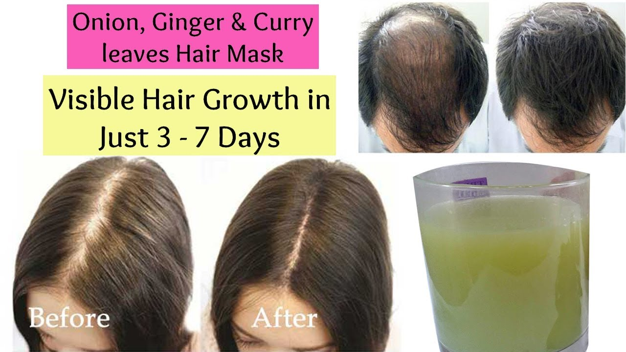 Visible Hair Growth In Just 3 Days Naturally Onion Ginger And
