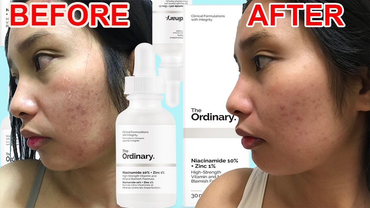 How To Use The Ordinary Niacinamide 10 Zinc 1 Review 2020 Galy Gascon Youtube