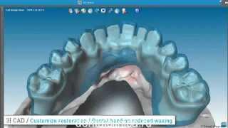 Протезирование зубов, моделирование hi-tech DWOS от European Clinic of Aesthetic Dentistry(Клиника эстетической стоматологии European Clinic of Aesthetic Dentistry Eiffel Medical Center Dentist http://dentalclinica.ru и имплантации в Будап..., 2014-04-04T19:44:05.000Z)