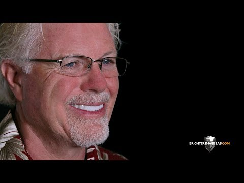 New Incredibil™ Smile Makeover! Amazing Dental Veneers By Brighter Image Lab In Hawaii!
