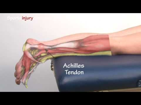 Achilles Tendonitis / Tendinopathy Explained in 90 Seconds