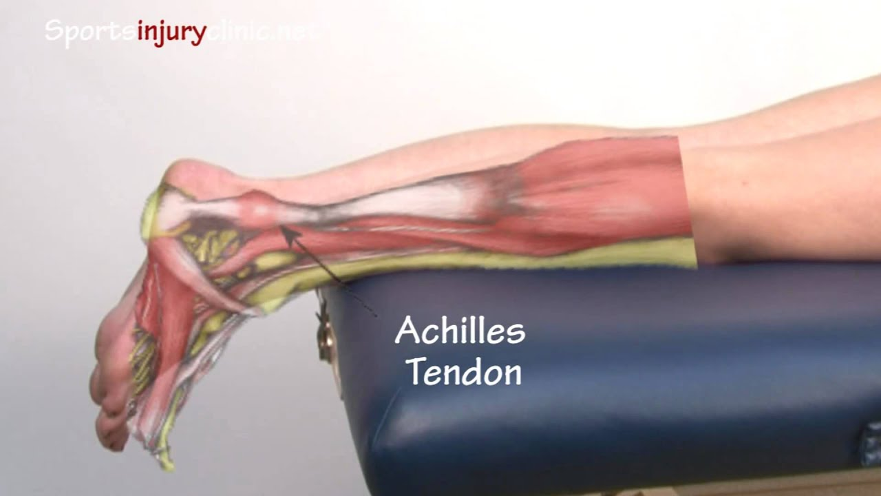 Achilles Tendonitis Tendinopathy Explained In 90 Seconds Youtube