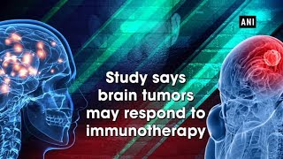 Study says brain tumors may respond to immunotherapy - #Health News