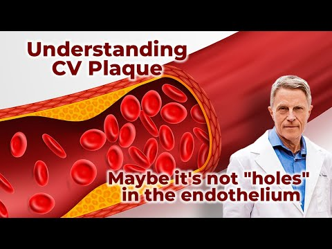 Understanding CV Plaque - Maybe It's Not holes In The Endothelium