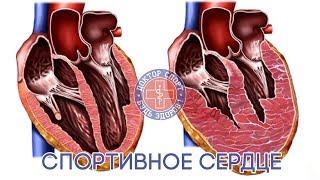 видео Болит сердце после тренировки и физических нагрузок
