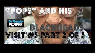 """Pops"" blackhead extractions session 3, Part 2"