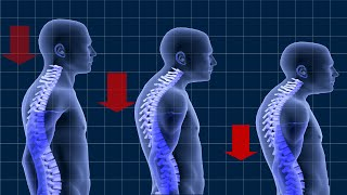 POSTURAL KYPHOSIS | Causes Treatment & Exercises - NOT a BRACE!