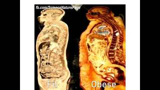 Fit vs obese
