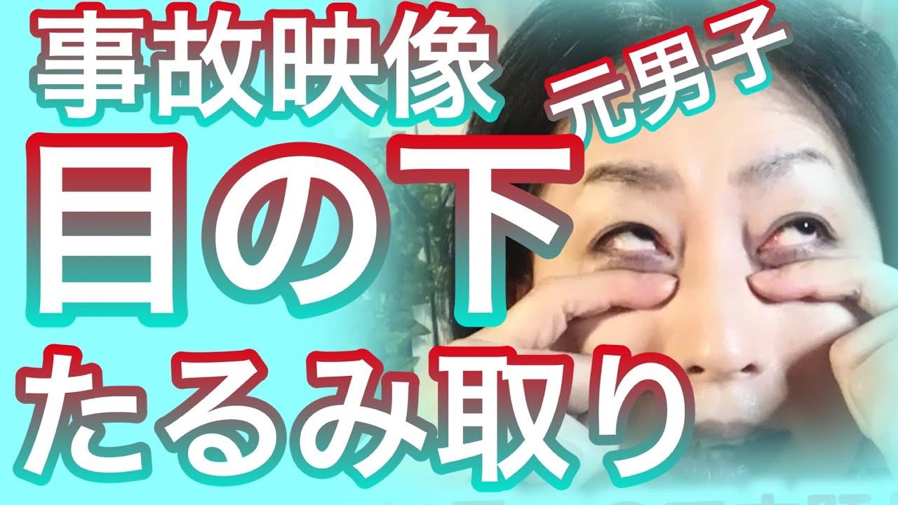 たったコレだけで目の下たるみ改善‼︎目元すっきり!【目の下のたるみ解消】