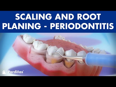Treatment of periodontal disease - Scaling and root planing ©