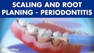 Penanganan abses periodontal..