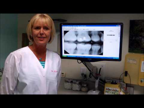 Digital Dental X-Rays Described and Explained