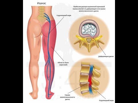 Защемление нерва в спине: лечение в домашних условиях