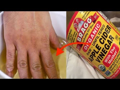 how-to-make-an-apple-cider-vinegar-soak-to-treat-arthritis-and-joint-pain