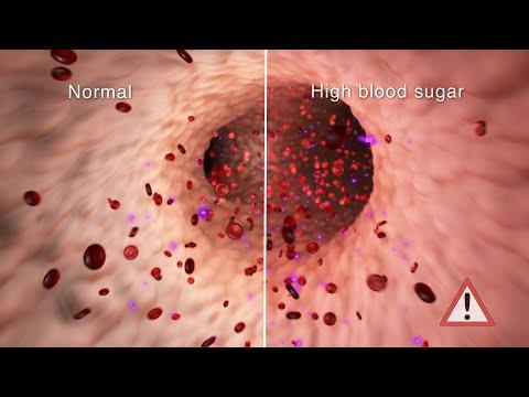 Managing Diabetes on Sick Days | Nucleus Health