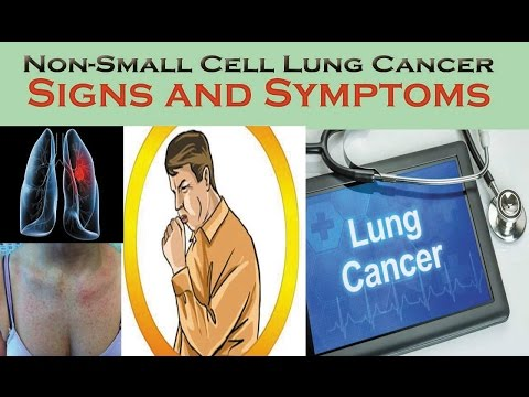 the-signs-and-symptoms-of-lung-cancer-|-causes-and-symptoms-of-(nsclc)-,-you-should-not-ignore