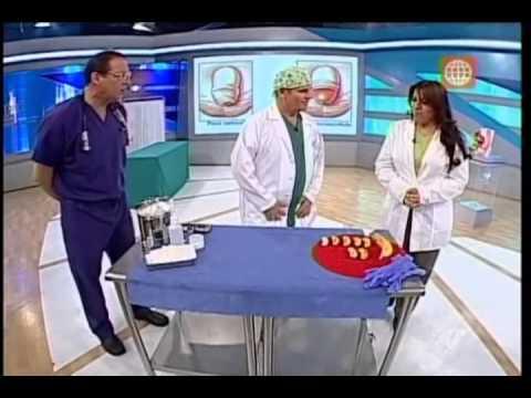 Precio de una circuncision en peru