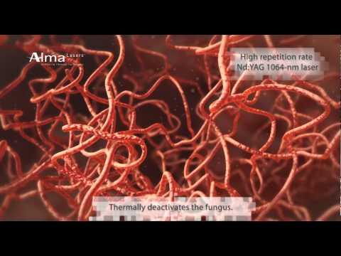 Clear Choice, tratamiento para los hongos en las uñas