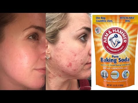 baking-soda-for-acne-treatment-how-to-remove-acne-scares