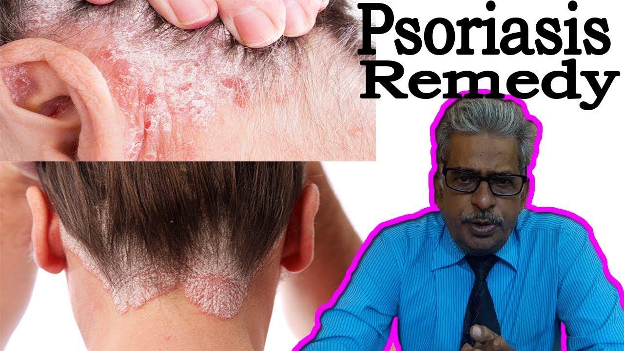psoriasis disease symptoms in hindi