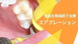 子どもの虫歯に!!痛みがほとんどない虫歯治療 Tooth Decay Treatment Using Dental Air Abrasion!!