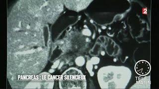 Santé - Pancréas : le cancer du silence