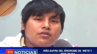 NIÑA SUFRE SÍNDROME DE WEST Y PIDE AYUDA