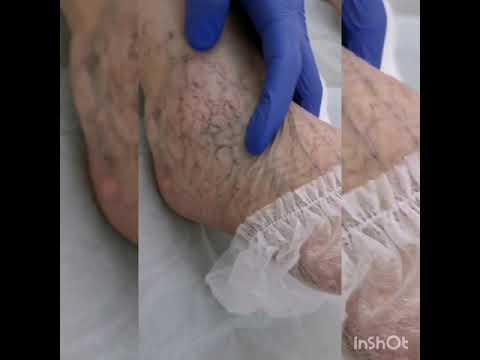 Склеротерапия - лечение варикоза поверхностных вен. Флеболог Исхаков Р.И.
