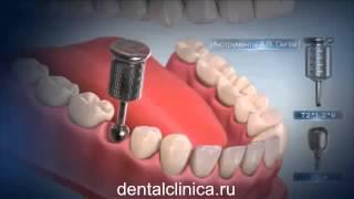 Лечение зубов красивая улыбка виниры коронки протезирование имплантация приятные цены medium5(, 2015-05-01T05:56:30.000Z)