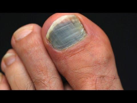 Ноготь на ноге почернел но не болит
