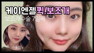 보조개수술 리얼셀카 동영상