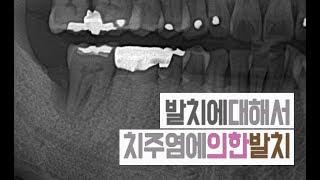 치아발치 [#1편 치주염에 의한 발치 /치조골이 얼마나 녹았을 때 발치할까요?]