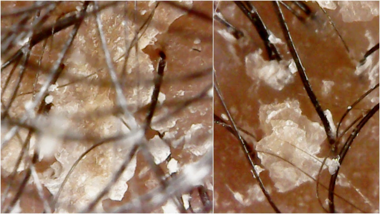 LOOKING AT MY SCALP UNDER A MICROSCOPE | SO FLAKEY!!! OMG