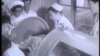 ポリオ 日本根絶の記録 上田哲 5分の1 昭36 Polio Japan