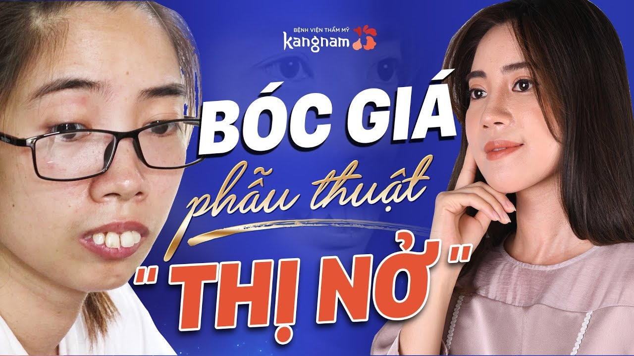 """Chi phí phẫu thuật """"rẻ đến bất ngờ"""" của """"Thị Nở"""" Nguyễn Thị Huê"""
