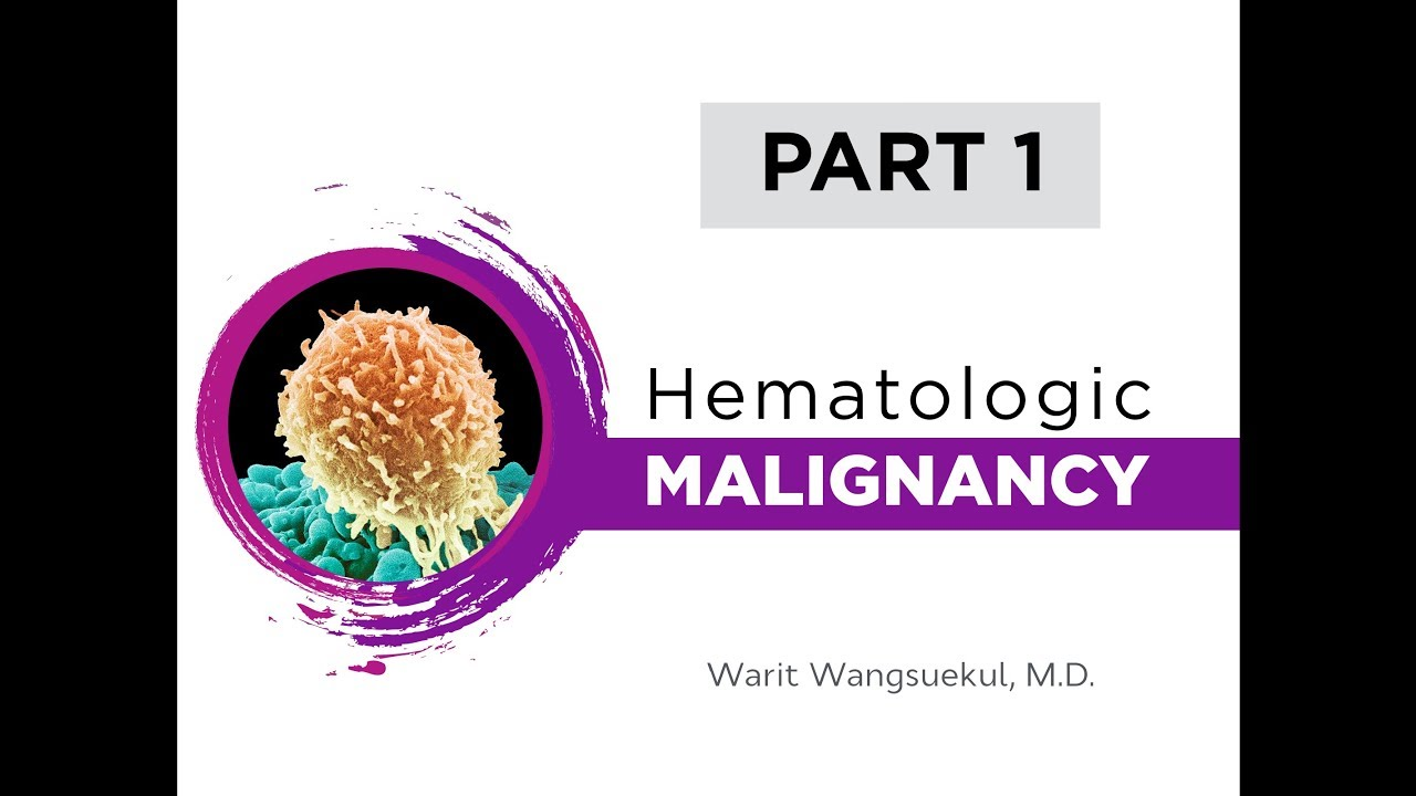 Hematologic Malignancy Part I - Lymphoid Malignancy