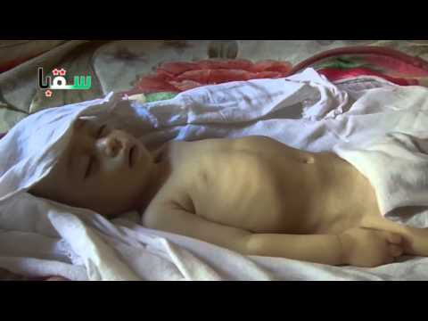 Syria|| Damascus|| A baby killed due to shorten in medical care 20-11-2013